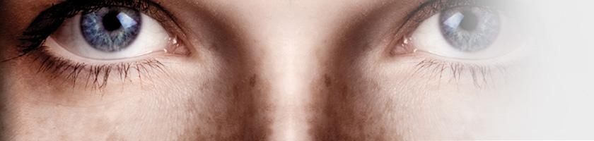 Hyperpigmentation-epidermique